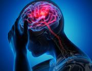 Udar mózgu w czasie pandemii