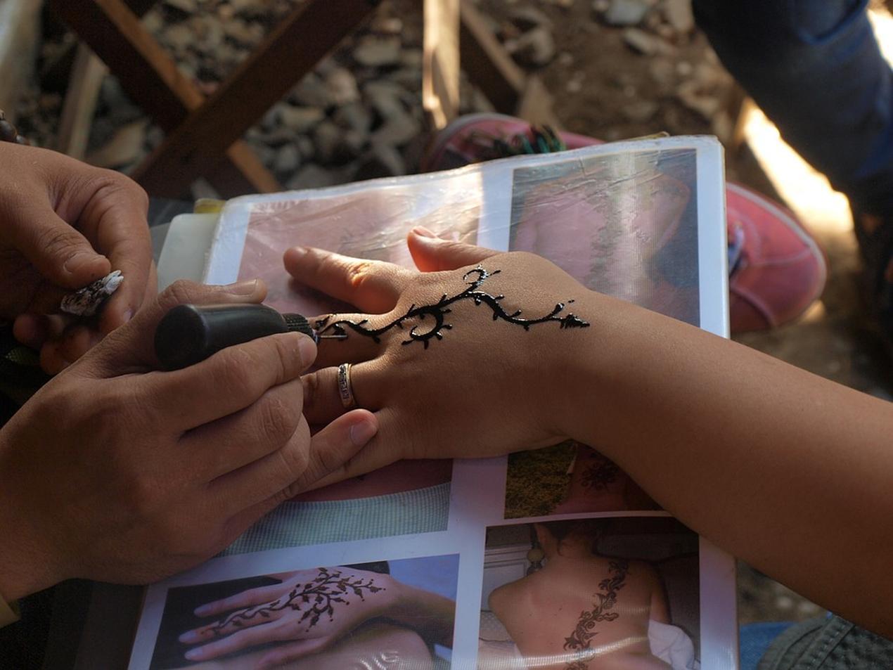 Modne Zmywalne Tatuaże Mogą Pozostawiać Blizny Puls
